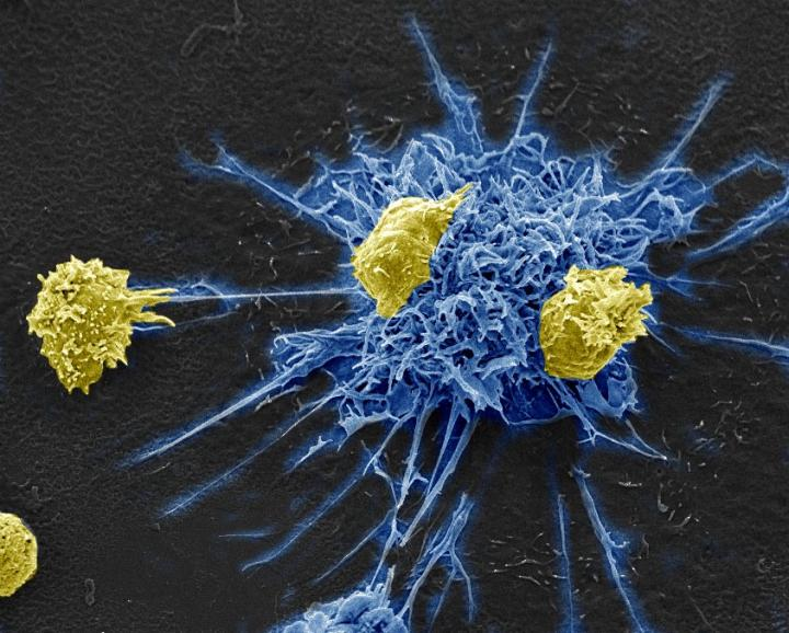 Immunotherapy Kicks and Kills HIV by Exploiting a Common Virus